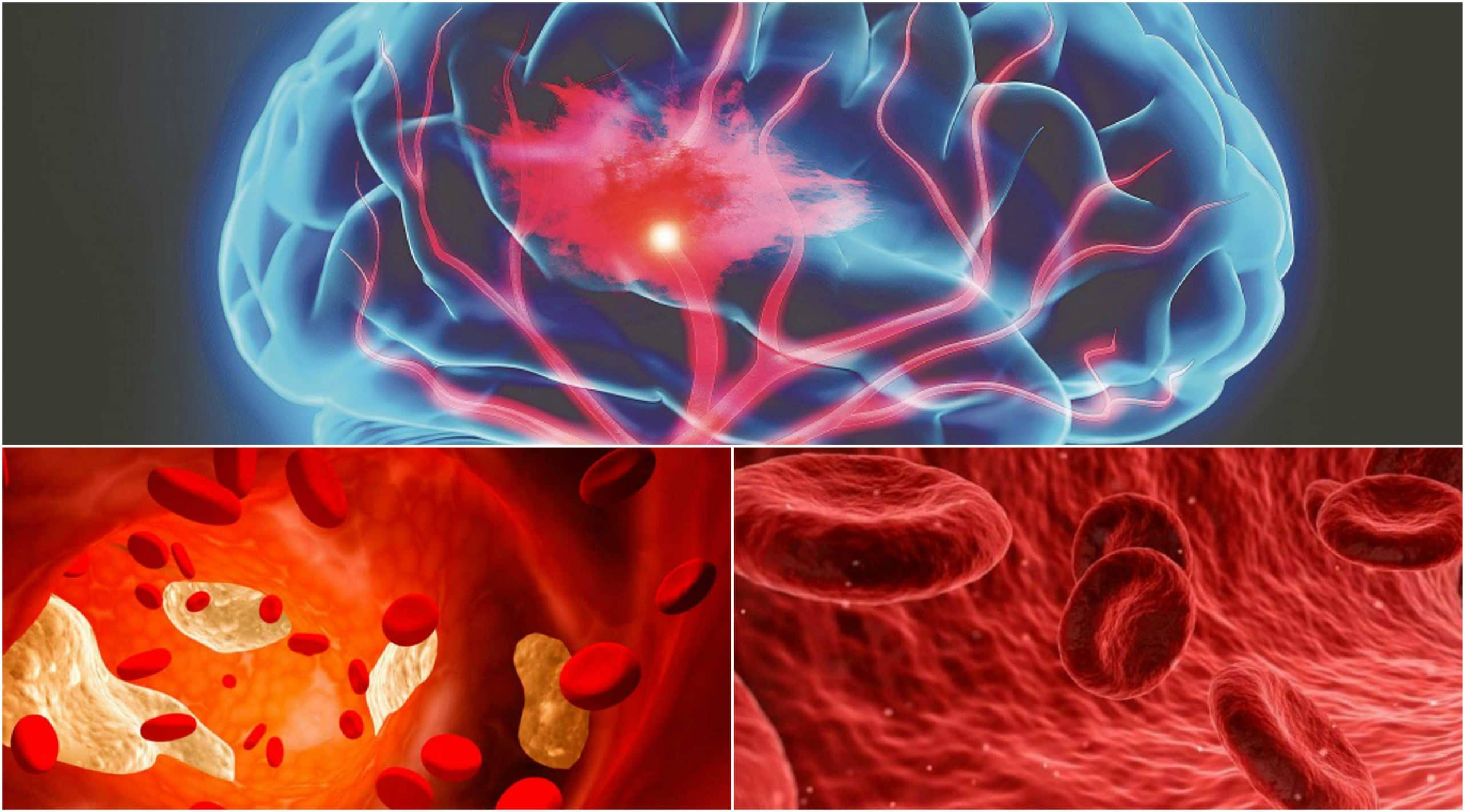 La embolia cerebral