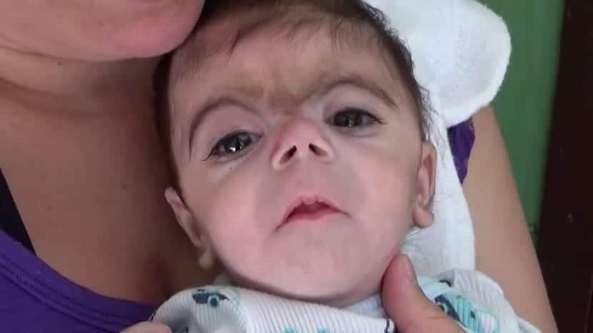 sindrome de cornelia de lange bebe