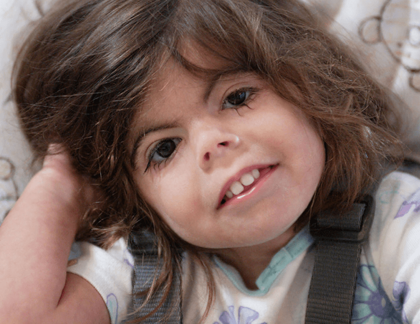 sindrome de cornelia de lange nena pequena