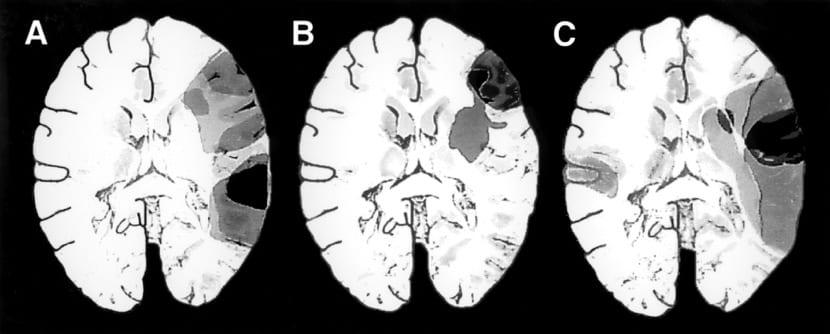 daño cerebral en afasia global