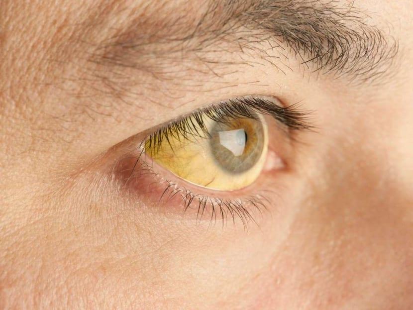 ojo amarillento por bilirrubina alta
