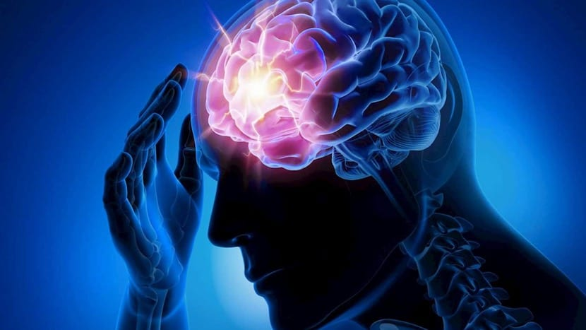cerebro con epilepsia