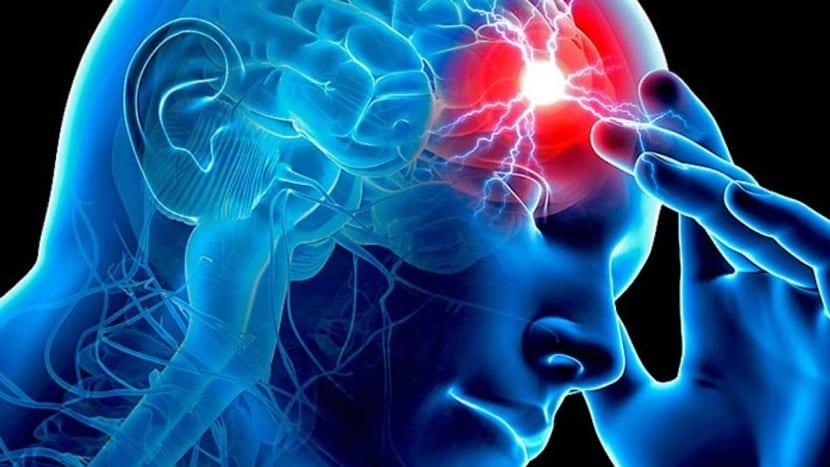 ictus en el cerebro