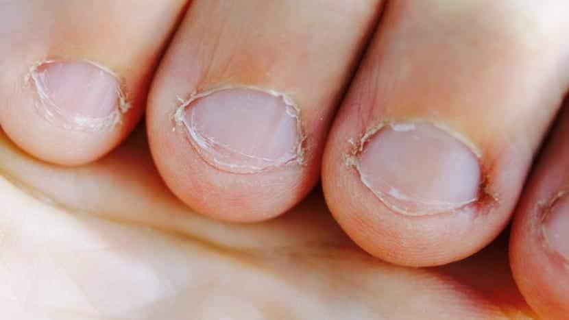 uñas feas y deformadas por onicofagia