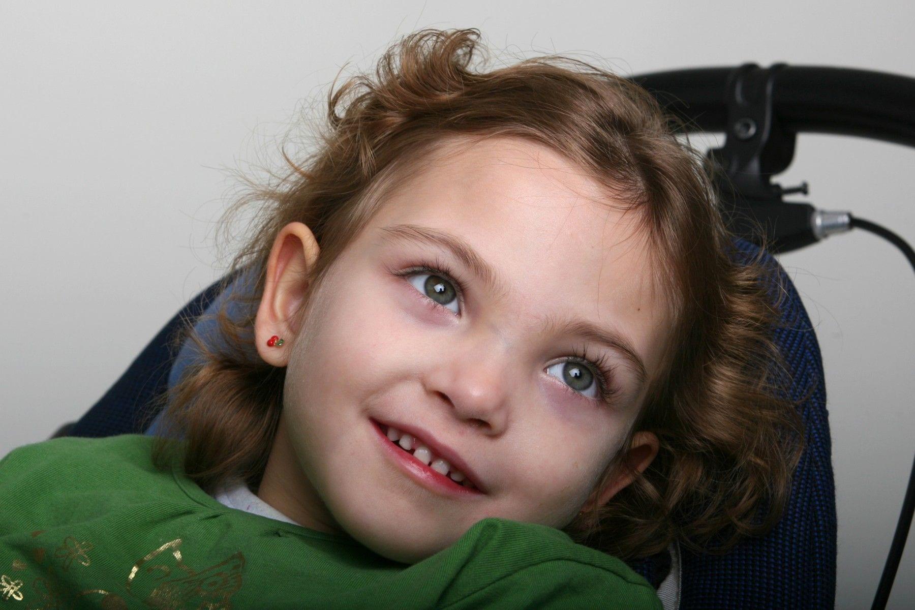 nena bonita con síndrome de rett